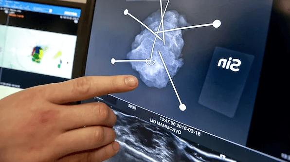 Российские онкологи заявили о росте заболеваемости раком почки